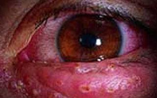 Герпетическая инфекция: клиника, диагностика и лечение