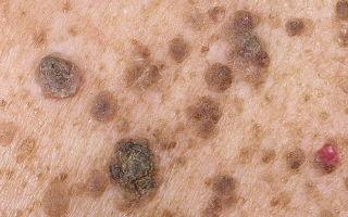 Чем лечить бородавки на руках — обзор действенных лекарств