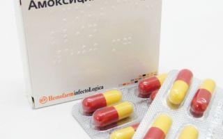 Антибиотики при мононуклеозе: нужны ли и какой лучше