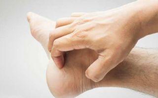 Как отличить грибок ногтей от других заболеваний — псориаза, аллергии, экземы