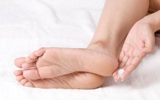 Грибок на ногах — как выглядит и чем лечить в домашних условиях