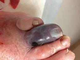 Аэробная инфекция это: виды, симптомы, возбудители