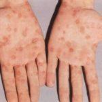 Сыпь при мононуклеозе: характеристика, ампициллиновая сыпь