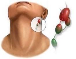 Мононуклеоз у взрослых: симптомы, диагностика, лечение