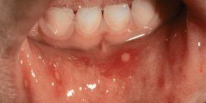 Энтеровирусная инфекция у детей: причина, симптомы, лечение