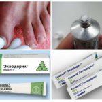 Грибок между пальцами ног: лечение - препараты недорогие, но эффективные