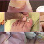 Как удалить ноготь пораженный грибком в домашних условиях?