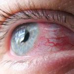 Как лечить кандидоз глаз?