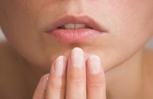 Молочница (кандидоз) в полости рта - симптомы и лечение
