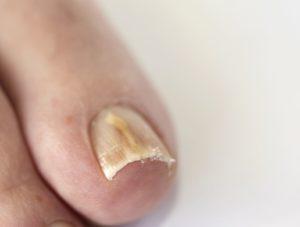 Виды грибка ногтей на ногах