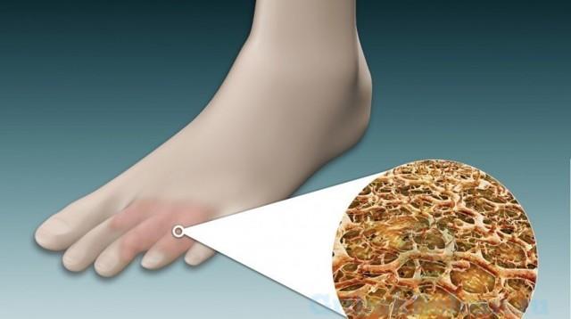 Лечение грибка ногтей белизной - инструкция по применению