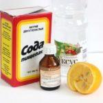 Лечение грибка пищевой содой