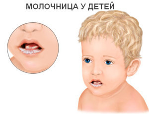 Молочница у ребенка во рту - откуда берется и как её лечить?