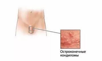 Остроконечные кондиломы у женщин: причины, симптомы, лечение и фото