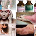 Лечение грибка борной кислотой