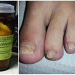 Серная мазь от грибка ногтей на ногах - помогает ли?