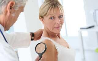 Что такое папиллома у женщин? Признаки и лечение инфекции