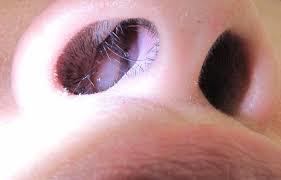 Лечение папиллом в или на носу
