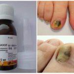 Клотримазол от грибка ногтей - отзывы, инструкция по применению