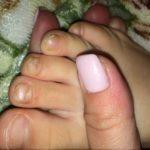 Грибок ногтей: начальная стадия - как выглядит