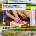 Лечение грибка стопы народными средствами в домашних условиях