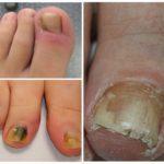 Грибок ногтей на ногах - чем лечить?